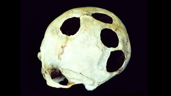 It's unlikely this Incan patient had four head injuries, each requiring surgery. The hole is another example of unexplained multiple openings. Survival rates for prehistoric cranial surgery in Peru greatly improved over the course of two millennia. In Incan times, 500 to 700 years ago, nearly 80% of patients survived.