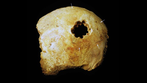 The hole in this skull was made by drilling a circle of smaller holes and then cutting away the bone between them. Of the four techniques used by Peru
