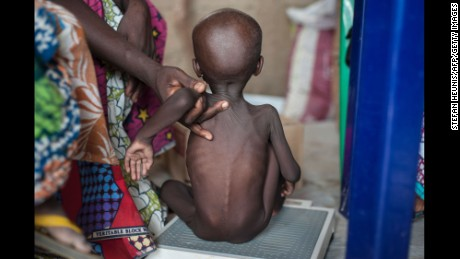 A young girl suffering from severe acute malnutrition getting weighed at a clinic on the outskirts of Maiduguri, in northeastern Nigeria.