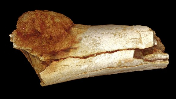 A  rendered image of an ancient foot bone fragment, showing a cancerous growth extending beyond the bone