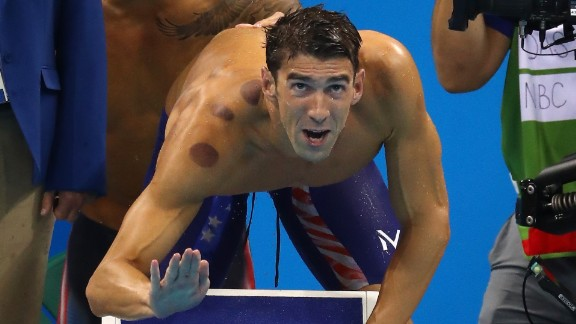 U.S swimmer Michael Phelps competes in the 4x100-meter freestyle relay on Sunday, August 7. The red marks on his body are the result of cupping -- an ancient therapy that has mostly been used in Middle Eastern and Asian countries, especially China.