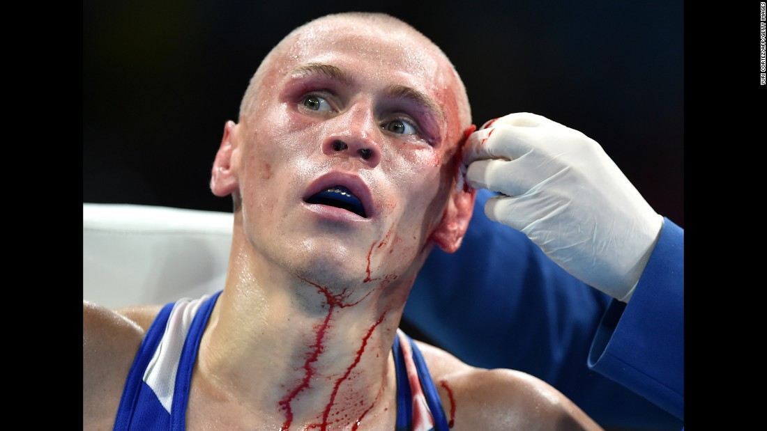 Russian boxer Vladimir Nikitin is attended to following an injury suffered in a bantamweight bout.