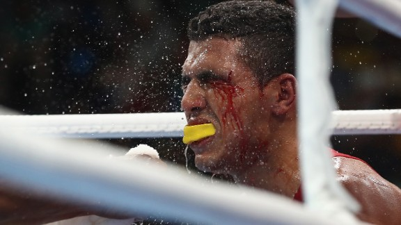 The trainer of Moroccan boxer Mohammed Rabil sprays water onto Rabil's face during his welterweight bout against Uzbekistan's Shakhram Giyasov. Giyasov won to advance to the final.