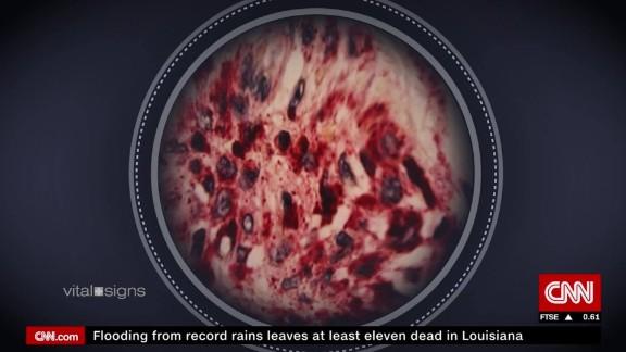 vital signs virus hunters spc c_00044011.jpg