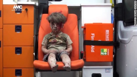 This image of Omran Daqneesh was widely published after the August strike last year.