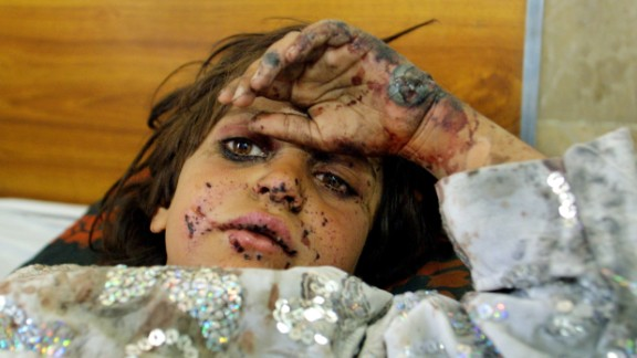 2001: Quetta, Pakistan -- Seven-year-old Fermina Bibi, from Kandahar, Afghanistan, lies wounded in a hospital bed. She and her brother were injured when their home in Kandahar was bombed. They were transported to Pakistan for treatment.