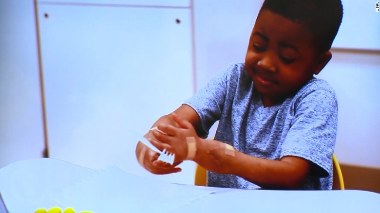 Boy celebrates one year since double hand transplant