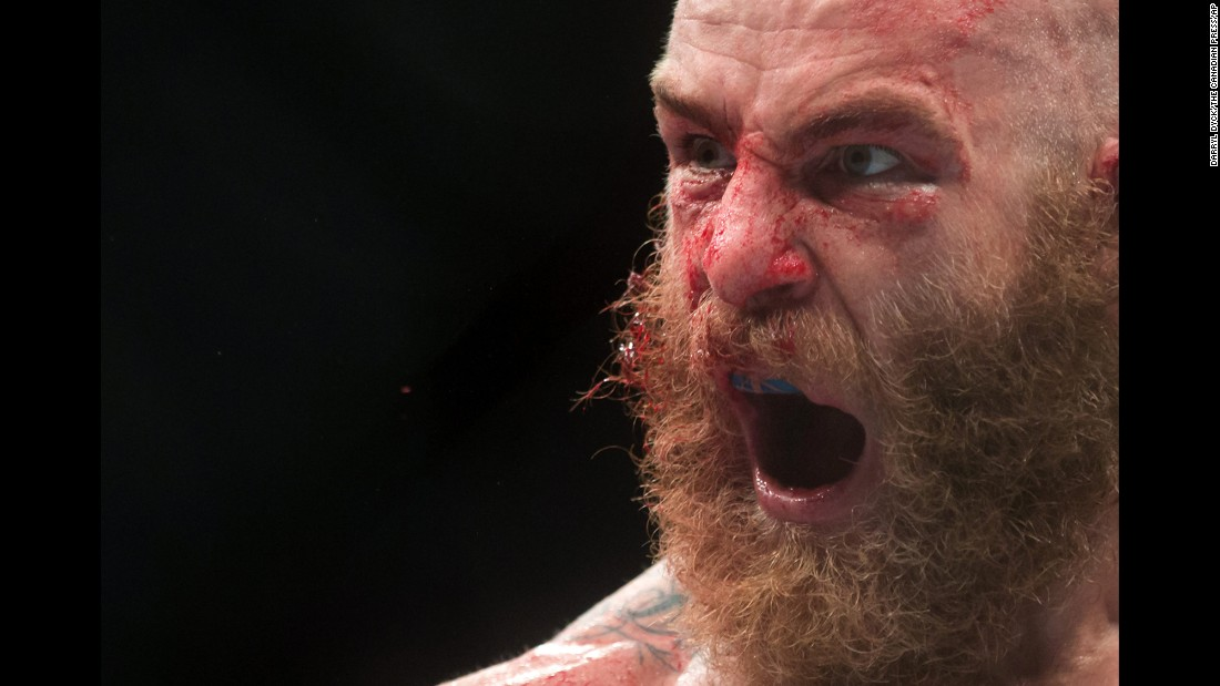 UFC fighter Garreth McLellan reacts after his middleweight bout against Alessio Di Chirico on Saturday, August 27. Di Chirico won by split decision.