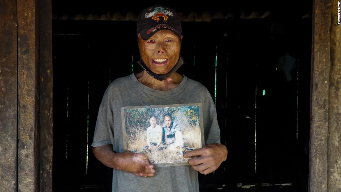 Laos: Legacy of 80 million unexploded US bombs - CNN