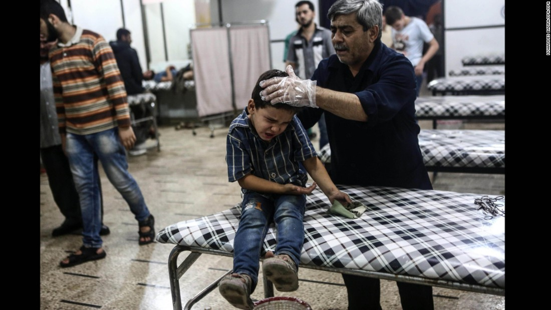 A boy receives medical attention after a reported airstrike in the rebel-held area of Douma, Syria, on Wednesday, September 7. The war in Syria is now in its fifth year.