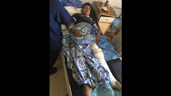 Mahmud Jassim was shot in the leg by a sniper on the first day of the ceasefire.