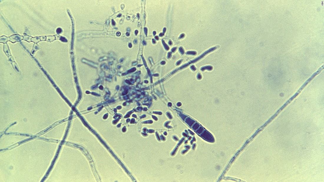 "While deadly fungal infections kill over a million people every year, superficial ones such as <a href=""http://www.cdc.gov/fungal/diseases/ringworm/"" target=""_blank"">ringworm</a> (pictured), athlete's foot and dandruff can affect 1-2 billion people annually, as well as put stress on health care systems."