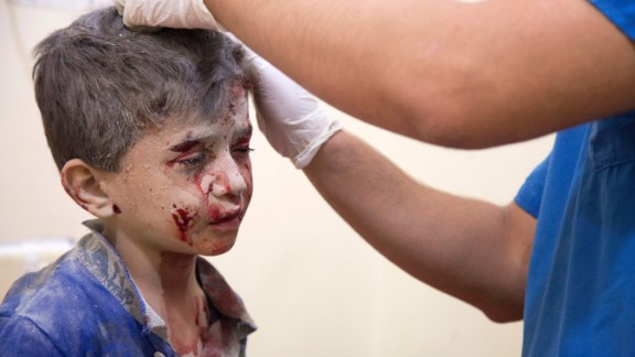 A Syrian boy receives treatment at a make-shift hospital following air strikes on rebel-held eastern areas of Aleppo on September 24, 2016.