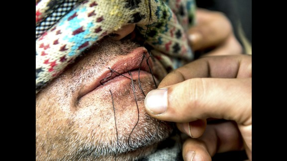A man sews the lips of an Iranian migrant at the camp on Thursday, March 3. Journalists said at least nine Iranians stitched their mouths shut and went on a hunger strike to protest the camp