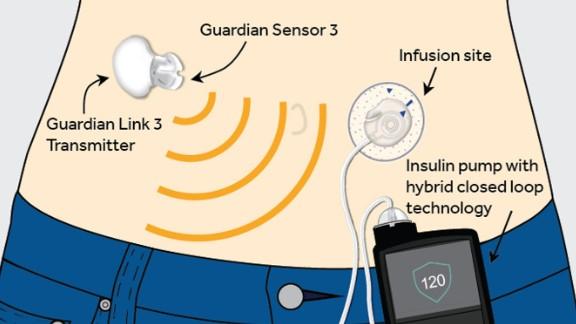 The Medtronic MiniMed 670G system