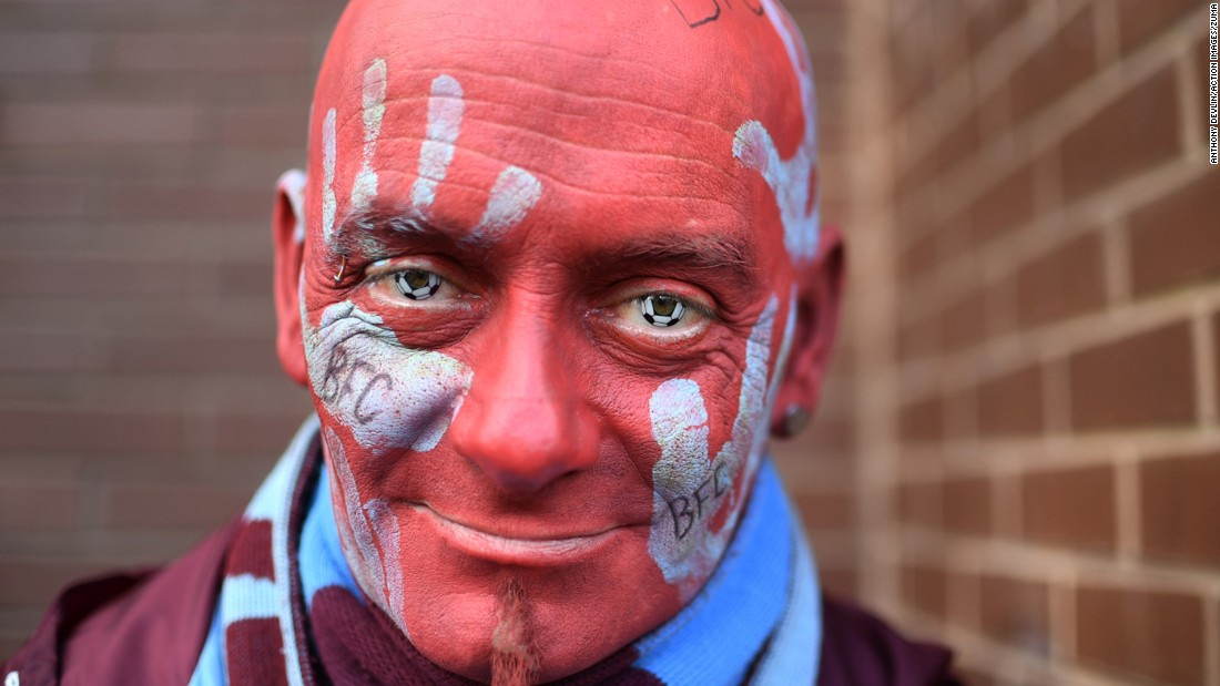 A fan of the English soccer club Burnley poses outside the Turf Moor stadium before a Premier League match on Sunday, October 2.