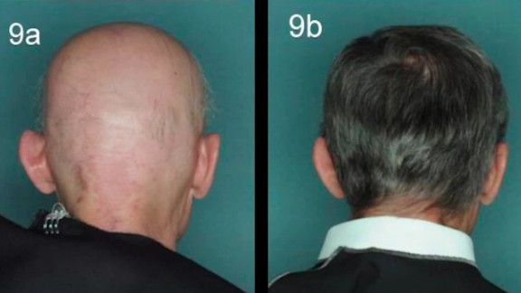 experimental drugs restore hair loss