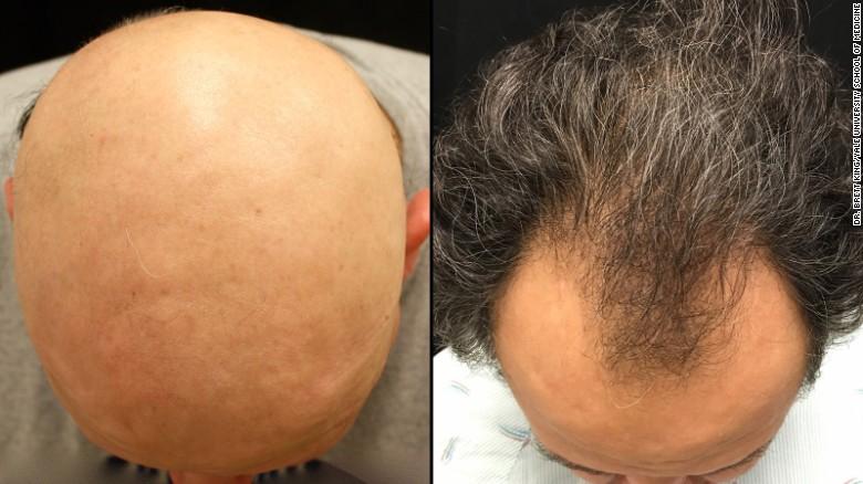 Drug Reverses One Baldness Type Is Male Pattern Next Cnn
