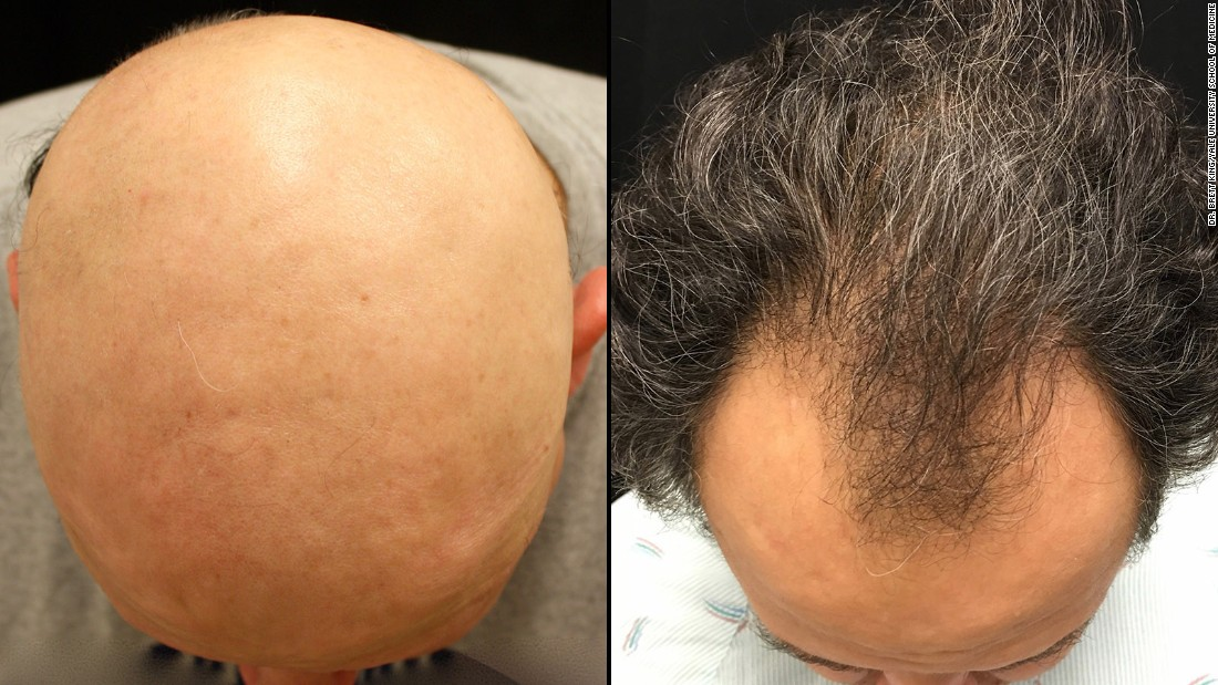 Drug Reverses One Baldness Type Is Male Pattern Next Cnn