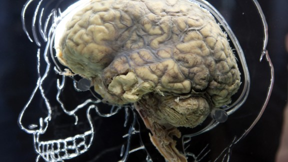 BRISTOL, UNITED KINGDOM - MARCH 10:  A real human brain being displayed as part of new exhibition at the @Bristol attraction is seen on March 8, 2011 in Bristol, England. The Real Brain exhibit - which comes with full consent from a anonymous donor and needed full consent from the Human Tissue Authority - is suspended in large tank engraved with a full scale skeleton on one side and a diagram of the central nervous system on the other and is a key feature of the All About Us exhibition opening this week.  (Photo by Matt Cardy/Getty Images)