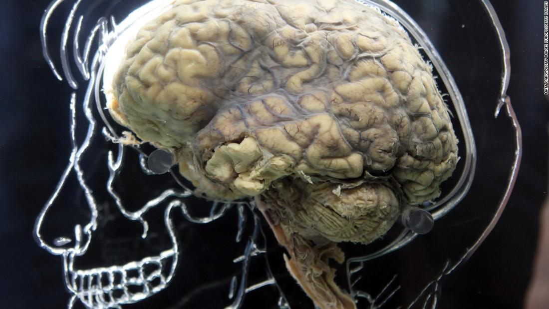 A Brain Like Supercomputer Could Help Siri Understand You Cnn