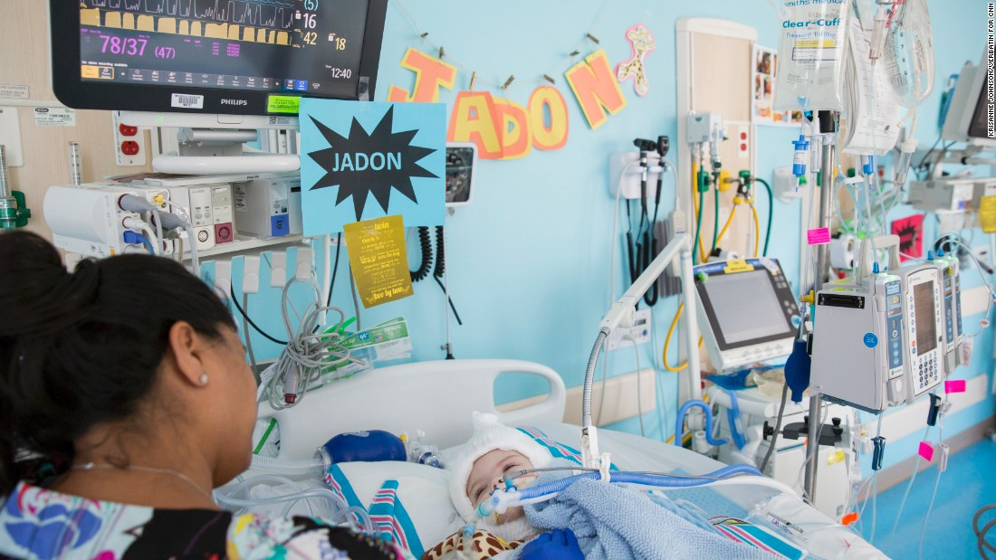 Jadon recovers in the  pediatric intensive care unit  shortly after the surgery.