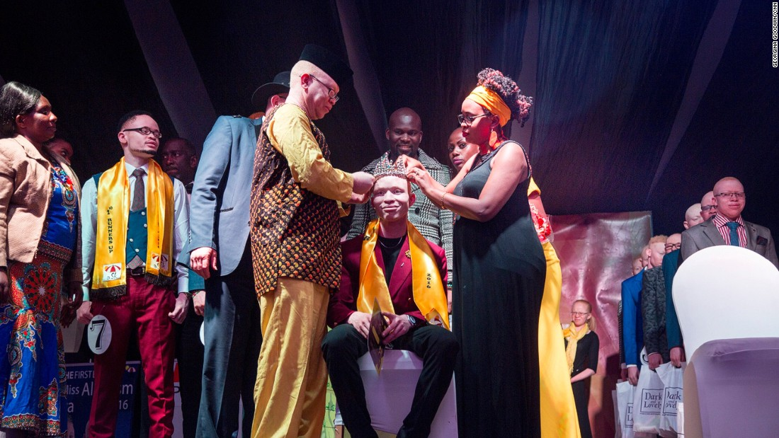 Jairus Ong'etta was crowned Mr Albinism at the event following an engaging spoken word performance.