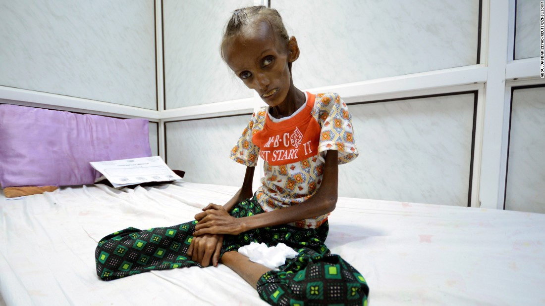 1300449bd280 Yemen food crisis leaves millions at risk of starving - CNN