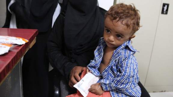 A 3-year-old is treated in Hajjah. In some areas, malnutrition among children under 5 is at a high.