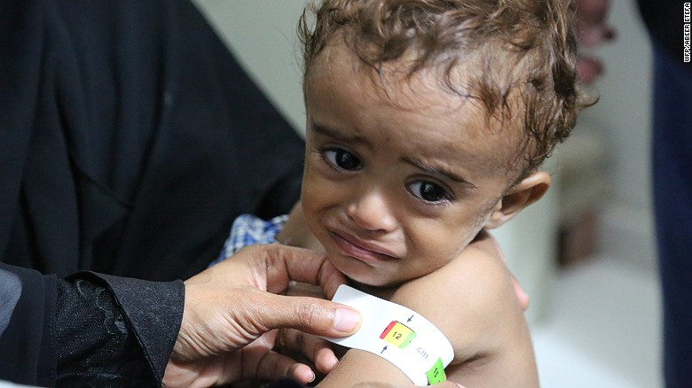 Millions at risk of starvation in Yemen