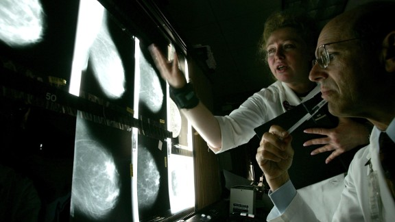 SAN FRANCISCO - AUGUST 18:  Dr. Edward Sickles MD (R) and Larisa Gurilnik RT look at films of breast x-rays at the UCSF Comprehensive Cancer Center August 18, 2005 in San Francisco, California. The UCSF Comprehensive Cancer Center continues to use the latest research and technology to battle cancer and was recently rated 16th best cancer center in the nation by US News and World Report.  (Photo by Justin Sullivan/Getty Images)