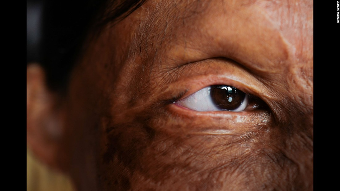 A close-up of Rupa's eye. According to the Acid Survivors Foundation in India, acid attacks result from a number of situations: family disputes, vengefulness, jealousy, mistaken identity and sex crimes, among others. There were 249 reported acid attacks last year in India, the foundation said.