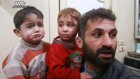 Thursday's airstrikes leave these two young boys injured in eastern Aleppo.