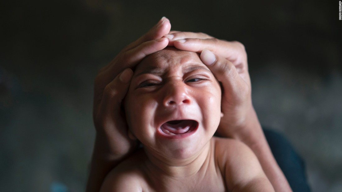 "<strong>January 30:</strong> Jose Wesley, a baby born with microcephaly, cries in Bonito, Brazil. Microcephaly is a neurological disorder that results in newborns with small heads and abnormal brain development. <a href=""http://www.cnn.com/2016/01/26/health/gallery/zika-virus/index.html"" target=""_blank"">An outbreak of the Zika virus</a> was linked to a surge of babies with the birth defect."