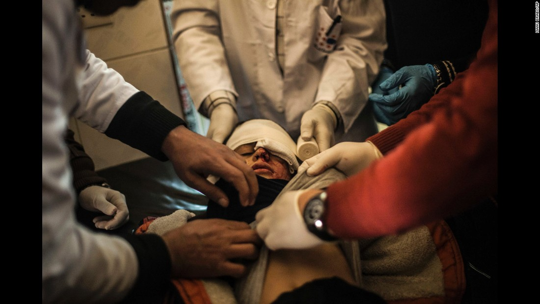 "Yousuf Odey, 10, receives treatment at a clinic in Mosul, Iraq, on Wednesday, December 7, after being wounded in the eye by Islamic State militants. An offensive <a href=""http://www.cnn.com/2016/10/17/world/gallery/mosul/index.html"" target=""_blank"">began in October</a> to reclaim Mosul, Iraq's second-largest city and the last major stronghold for ISIS in the country."