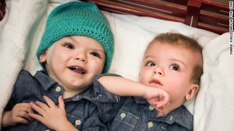 Separated twins move to rehab after emotional hospital farewell