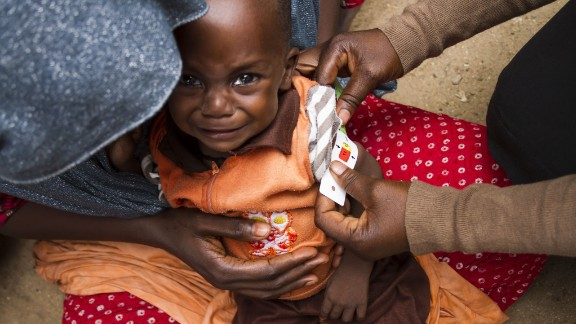 Young child is screened for malnutrition at the International Rescue Committee stabilization center in Maiduguri, northeastern Nigeria