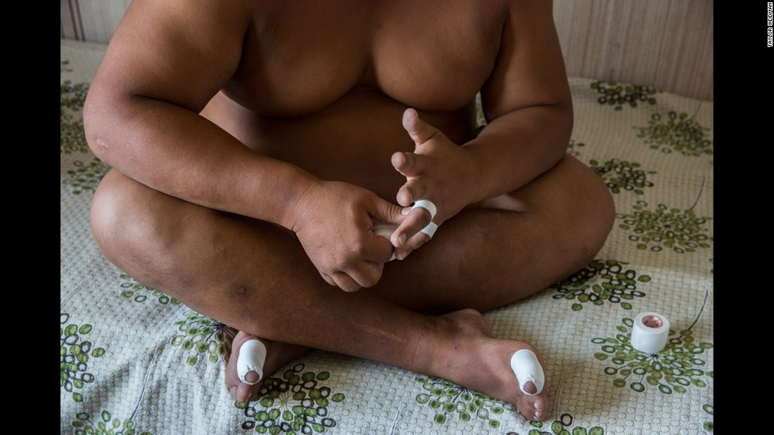 A wrestler tapes his hands as he prepares for practice.