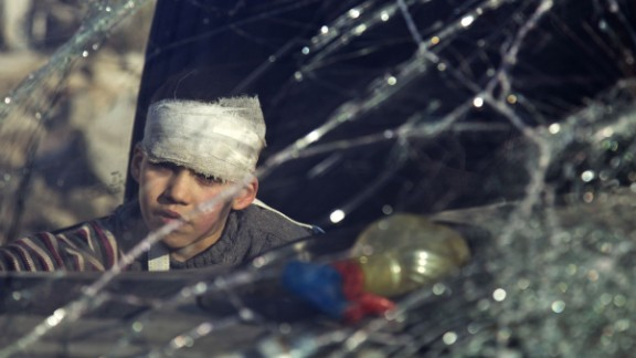 A wounded by sits inside an ambulance as Syrian rebels and their families gather at the rebel-held al-Amiriyah neighbourhood as they wait to be evacuated to the government-controlled area of Ramoussa on the southern outskirts of the city on December 15, 2016.  Russia, Syrian military sources and rebel officials confirmed that a new agreement had been reached after a first evacuation plan collapsed the day before amid fresh fighting. Syrian state television reported that some 4,000 rebels and their families were to be evacuated.    / AFP / KARAM AL-MASRI        (Photo credit should read KARAM AL-MASRI/AFP/Getty Images)