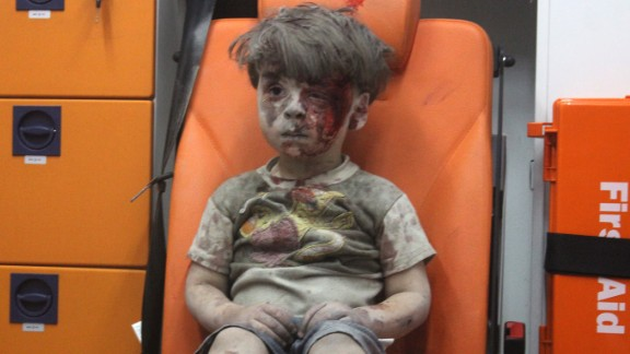 Wounded 5-year-old Omran Daqneesh sits alone in the back of an ambulance after he was injured during a Russian or Assad regime forces airstrike targeting the Qaterji neighborhood of Aleppo on August 17, 2016.