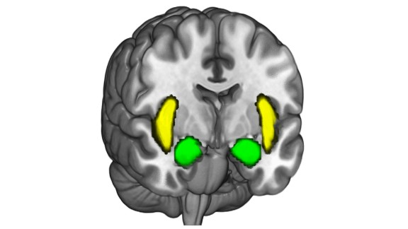 The amygdala -- the two almond-shaped areas hugging the center of the brain near the front -- tends to become active when people stick to their political beliefs, according to the new study.