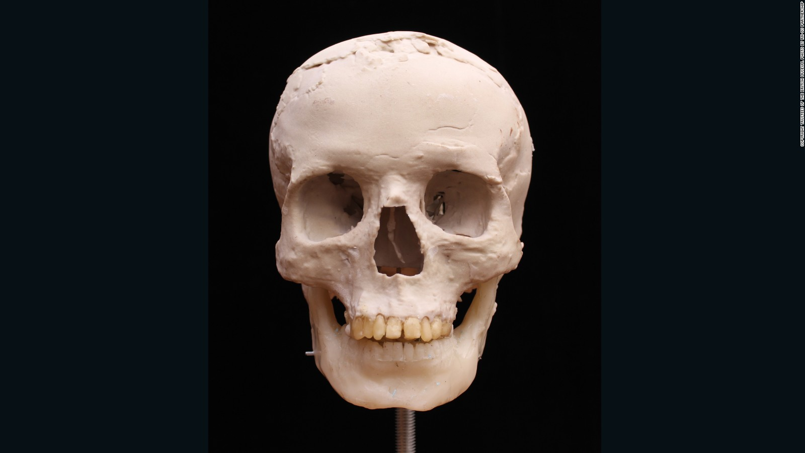 A 9500 Year Old Skull Gets A 3d Makeover Cnn Style