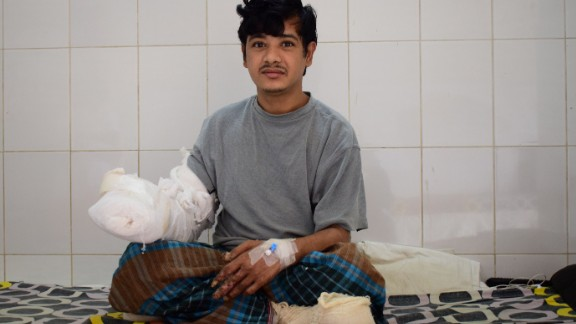 Bajandar in Dhaka, Bangladesh, after his surgeries