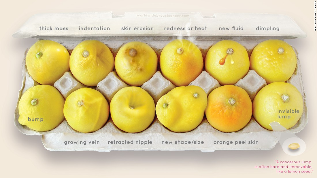 Carton of lemons offers simple lesson about breast cancer - CNN