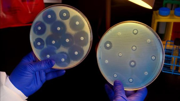 Bacteria resistant to antibiotics is are killing thousands in Europe each year.