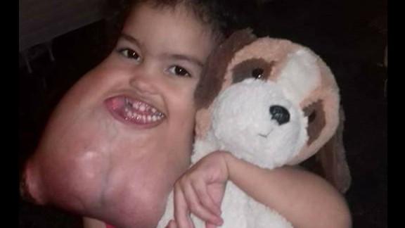 Doctors estimated that Melyssa Delgado Braga's tumor weighed 5 pounds.
