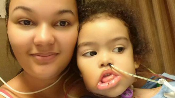 Melyssa has regained full use of her tongue after surgery.