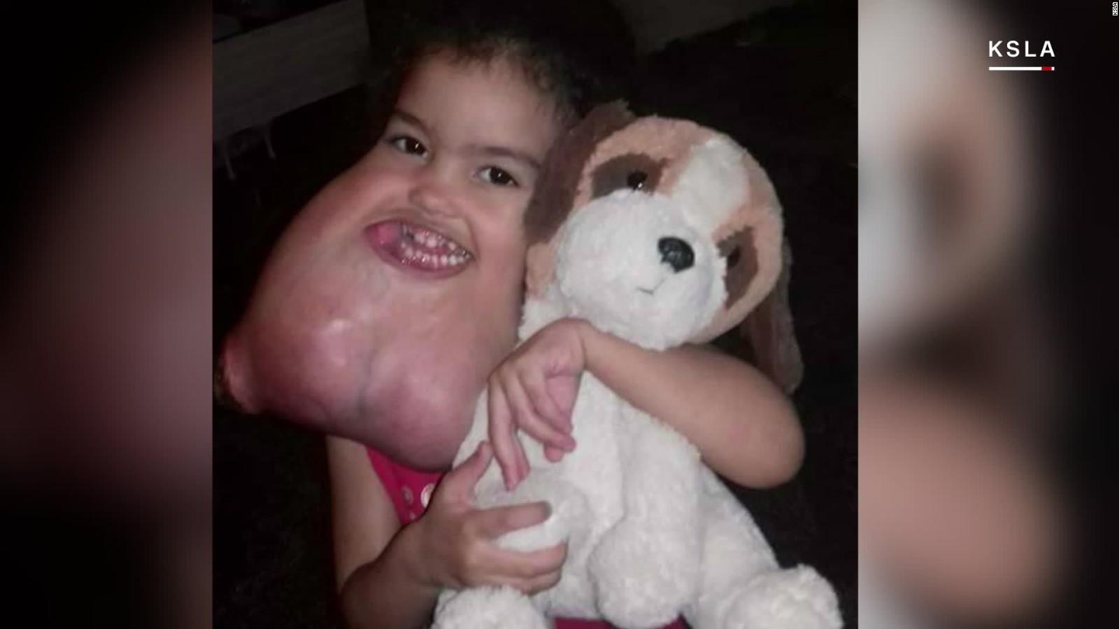 us surgeons remove rare facial tumor from brazilian girl - cnn