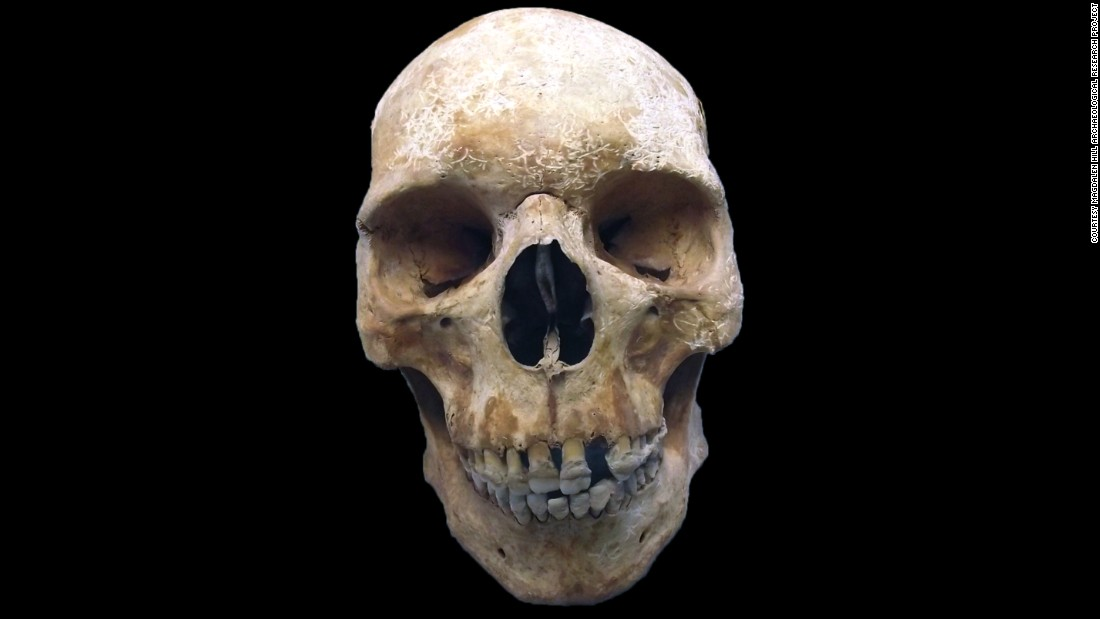 "By studying the skeleton of this medieval pilgrim, researchers have been able to <a href=""http://www.cnn.com/2017/01/26/health/leprosy-medieval-pilgrim-skeleton-study/index.html"">genotype leprosy</a>. They also discovered that leprosy-causing bacteria have changed little over hundreds of years, possibly explaining the decline in the disease after it peaked in medieval Europe as humans developed resistance."