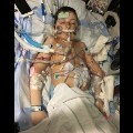 2a.jpg.Pediatric heart-lung transplant